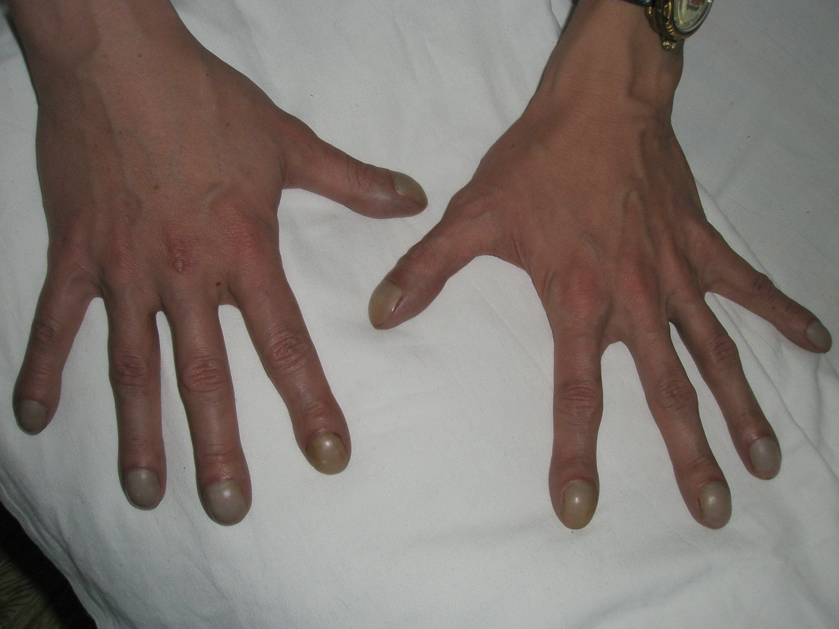 Болезни пальцев руки картинки